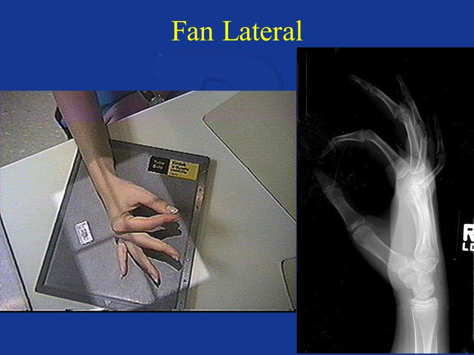Fan Lateral