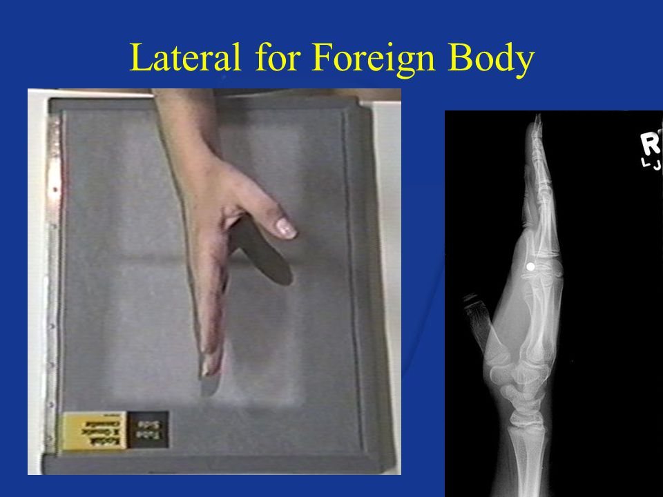 Lateral for Foreign Body