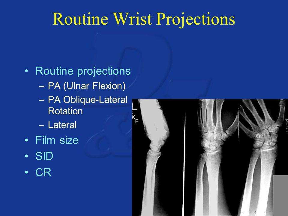 Routine Wrist Projections