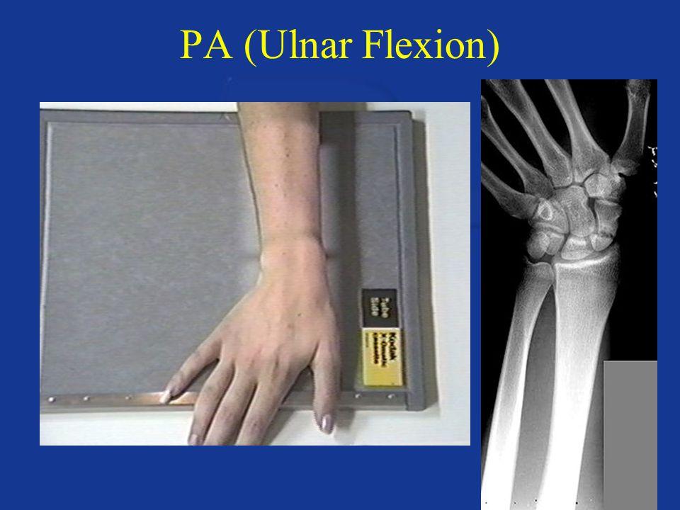 PA (Ulnar Flexion)