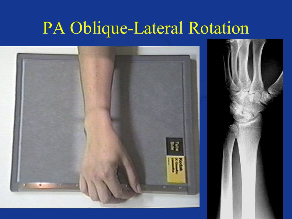 PA Oblique-Lateral Rotation