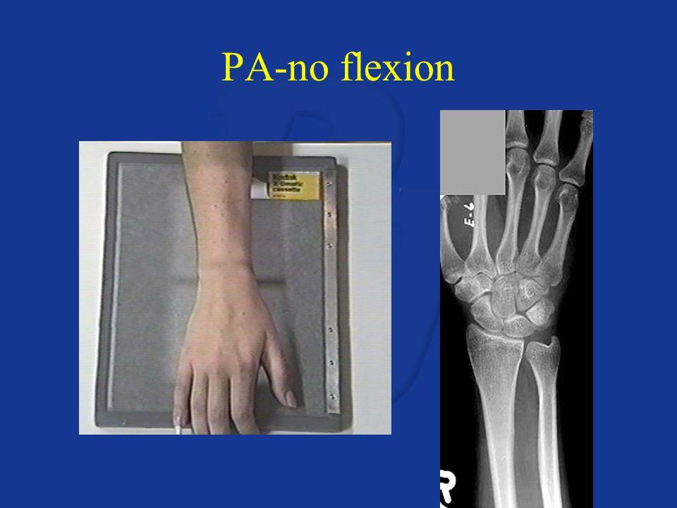 PA-no flexion