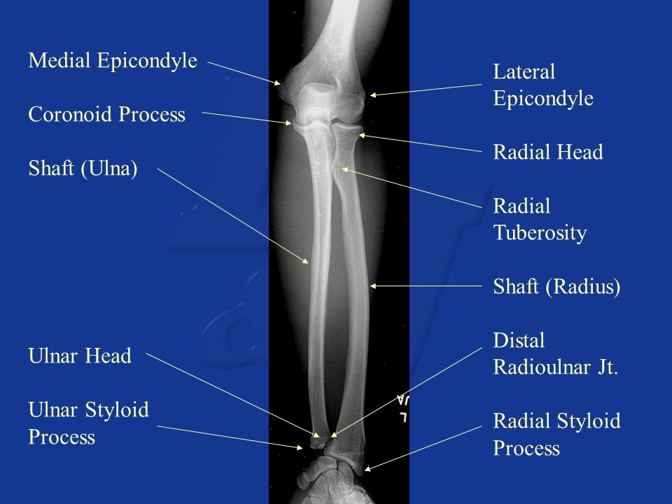 Medial Epicondyle Coronoid Process. Shaft (Ulna) Ulnar Head. Ulnar Styloid. Process. Lateral Epicondyle.