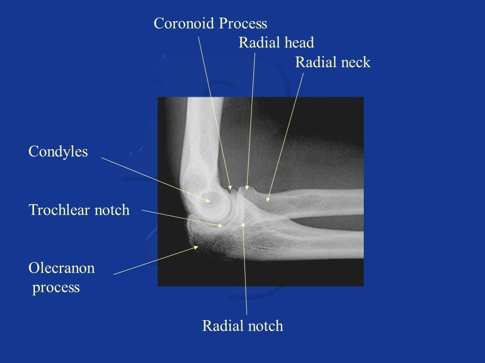 Coronoid Process Radial head Radial neck Condyles Trochlear notch Olecranon process Radial notch
