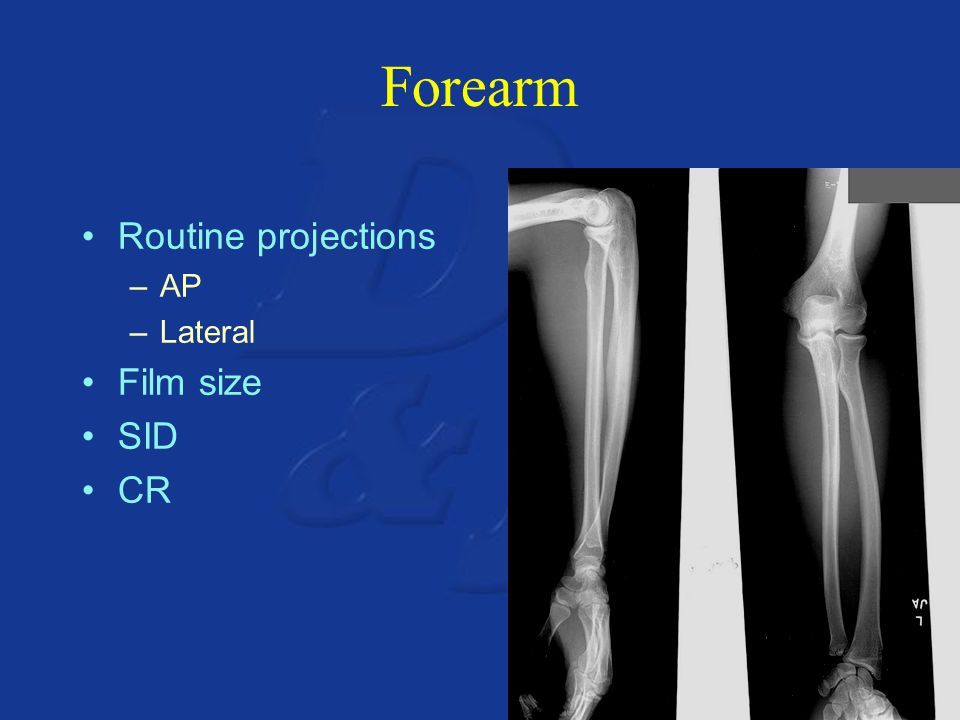 Forearm Routine projections AP Lateral Film size SID CR