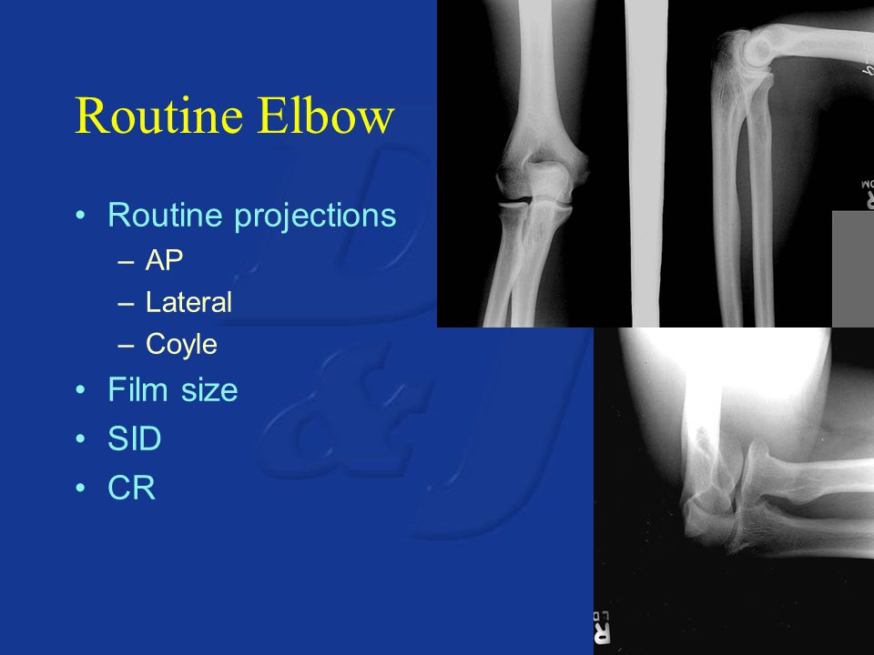 Routine Elbow Routine projections AP Lateral Coyle Film size SID CR