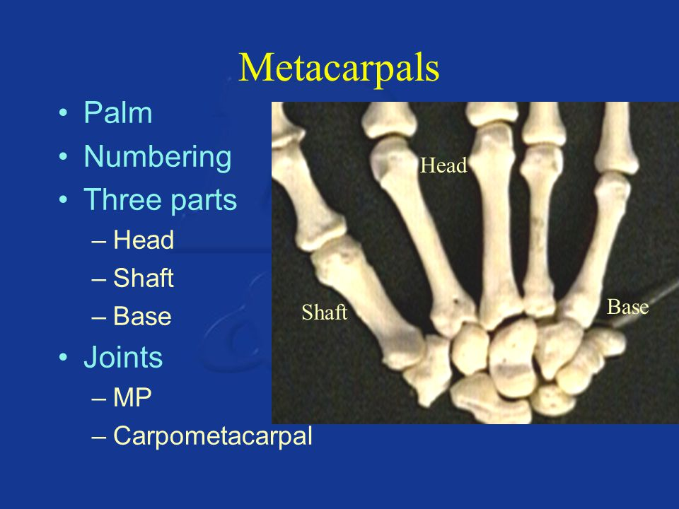 Metacarpals Palm Numbering Three parts Joints Head Shaft Base MP