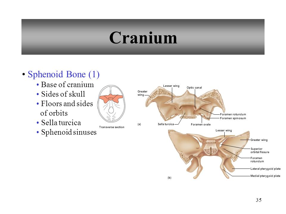 Cranium Sphenoid Bone (1) Base of cranium Sides of skull