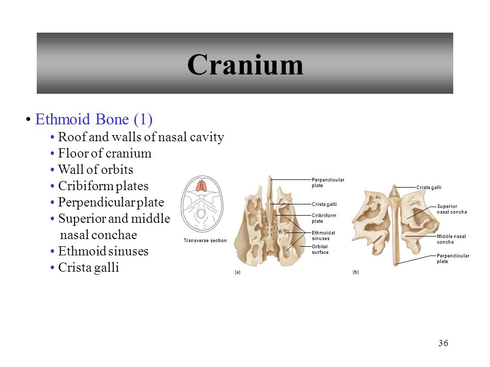 Cranium Ethmoid Bone (1) Roof and walls of nasal cavity