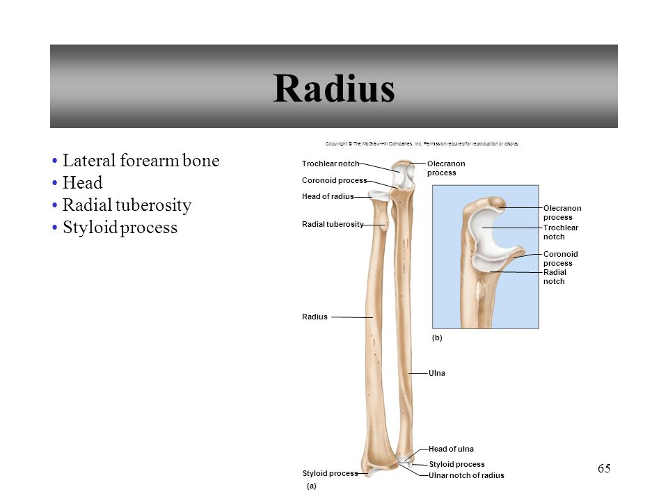 Radius Lateral forearm bone Head Radial tuberosity Styloid process