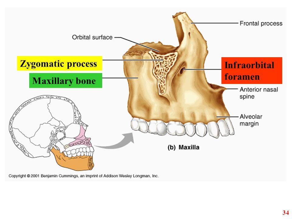 Zygomatic process Infraorbital foramen Maxillary bone 34