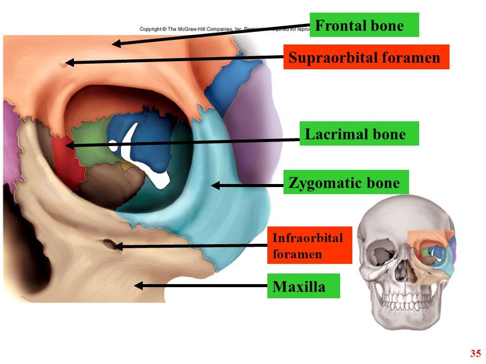 Frontal bone Supraorbital foramen Lacrimal bone Zygomatic bone Maxilla