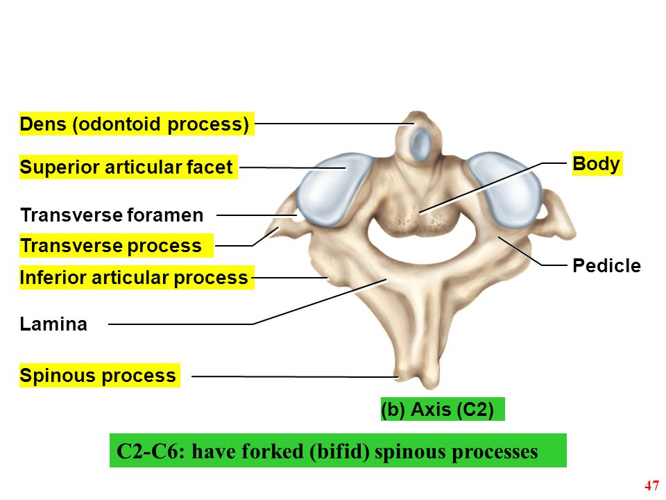 C2-C6: have forked (bifid) spinous processes