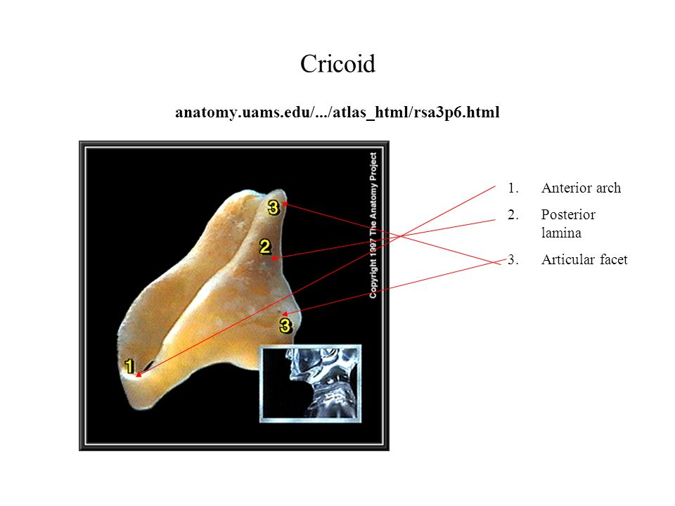 Cricoid anatomy.uams.edu/.../atlas_html/rsa3p6.html