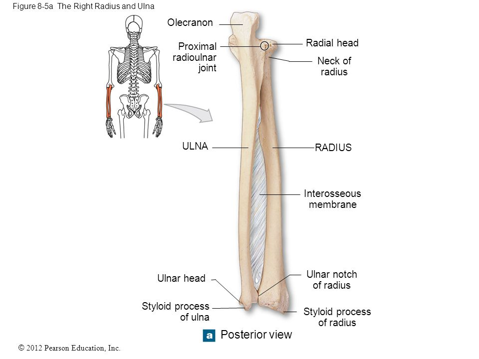 Figure 8-5a The Right Radius and Ulna