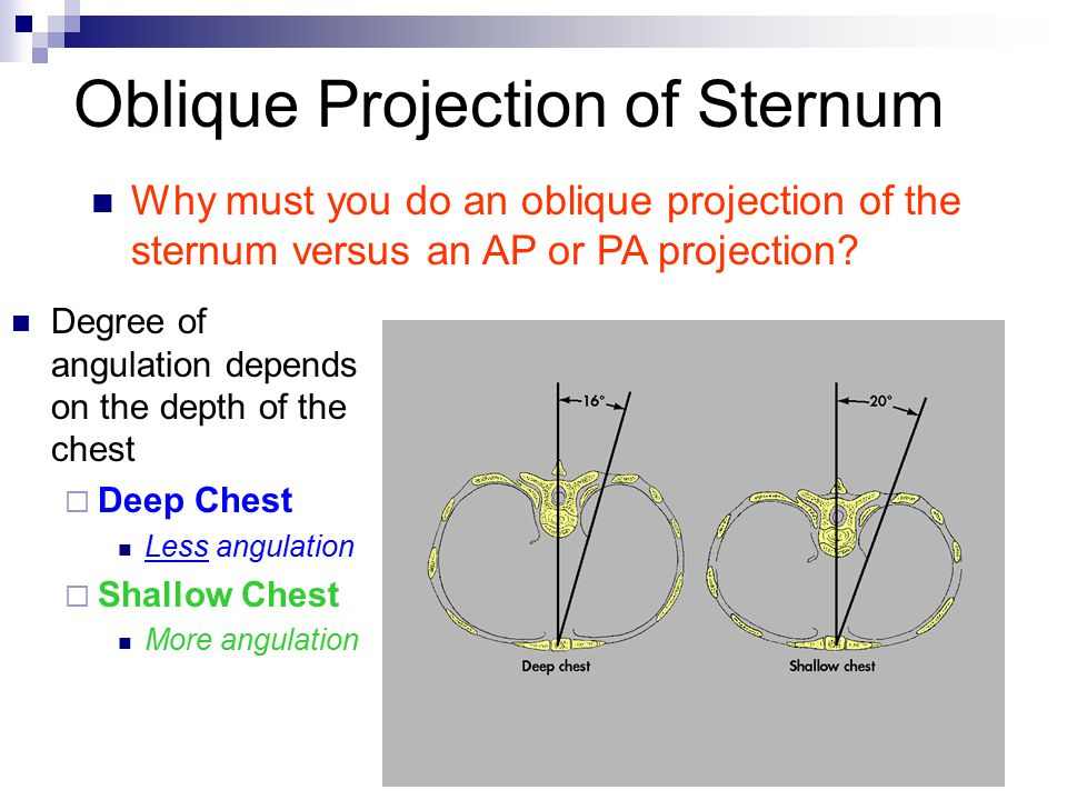 Oblique Projection of Sternum