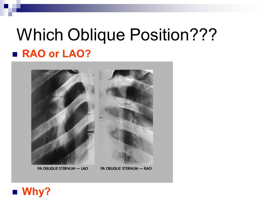 Which Oblique Position