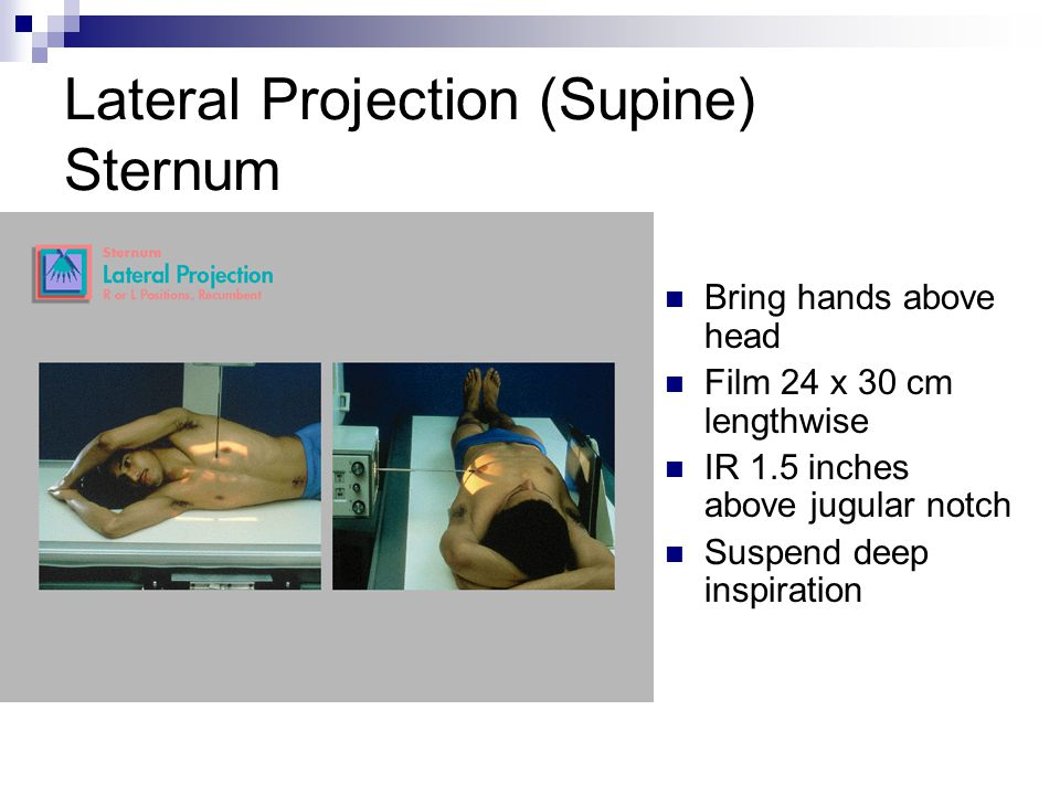 Lateral Projection (Supine) Sternum