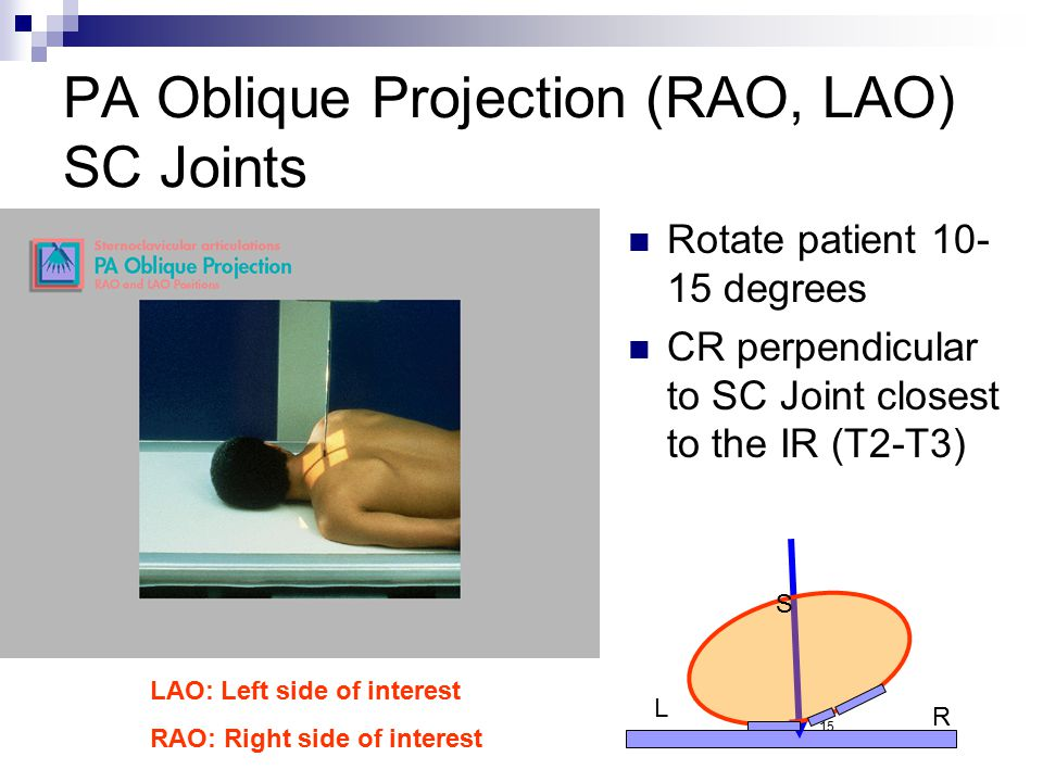 PA Oblique Projection (RAO, LAO) SC Joints