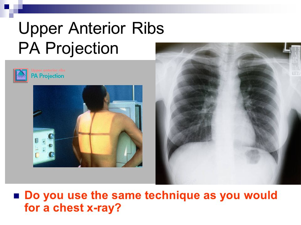 Upper Anterior Ribs PA Projection