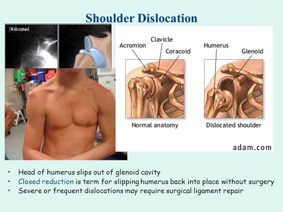 Shoulder Dislocation Head of humerus slips out of glenoid cavity