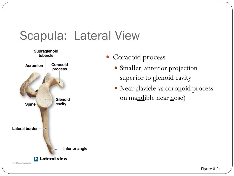 Scapula: Lateral View Coracoid process