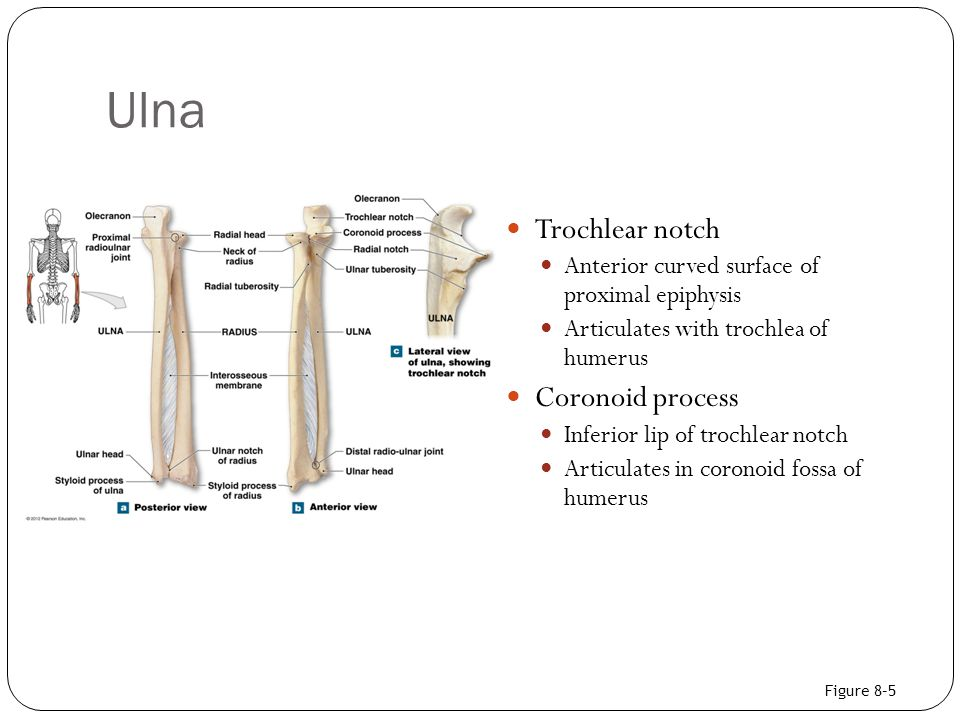 Ulna Trochlear notch Coronoid process