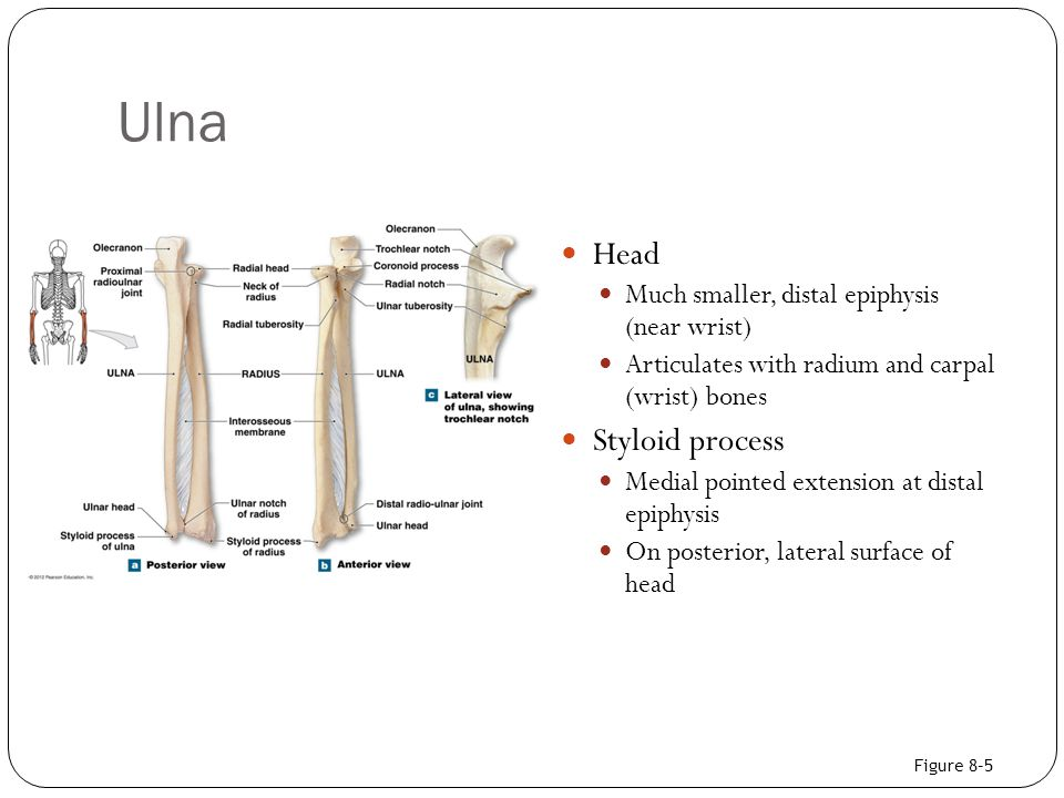 Ulna Head Styloid process Much smaller, distal epiphysis (near wrist)