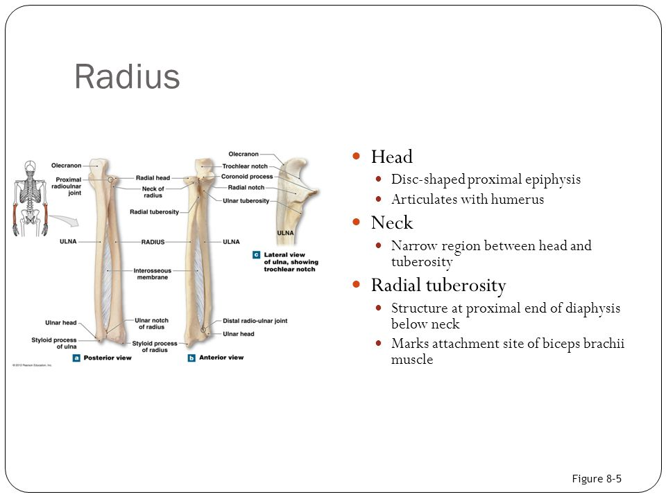 Radius Head Neck Radial tuberosity Disc-shaped proximal epiphysis