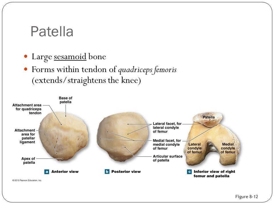 Patella Large sesamoid bone