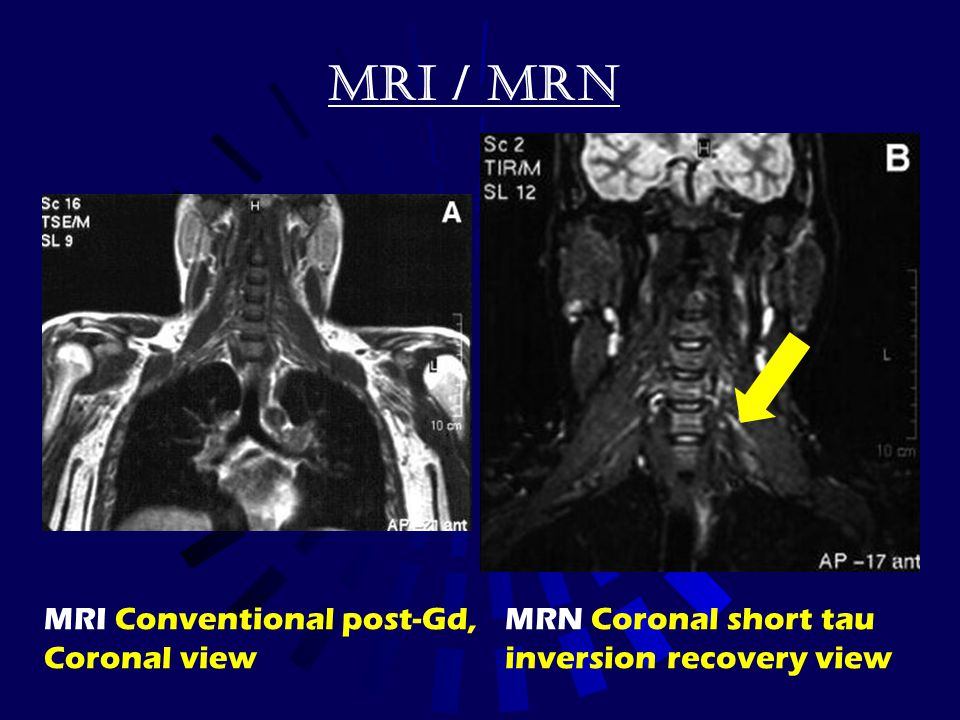 MRI / MRN MRI Conventional post-Gd, Coronal view MRN Coronal short tau
