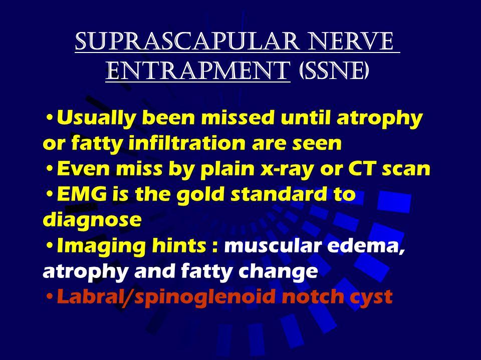 Suprascapular nerve Entrapment (SSNE)
