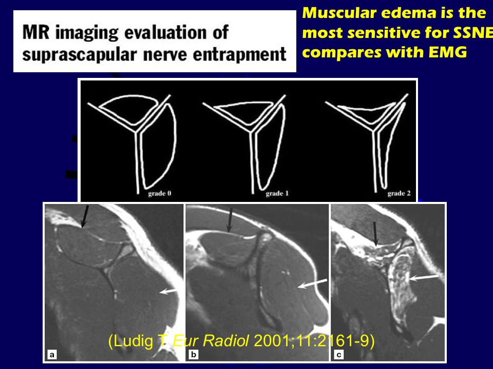 Muscular edema is the most sensitive for SSNE compares with EMG (Ludig T Eur Radiol 2001;11:2161-9)