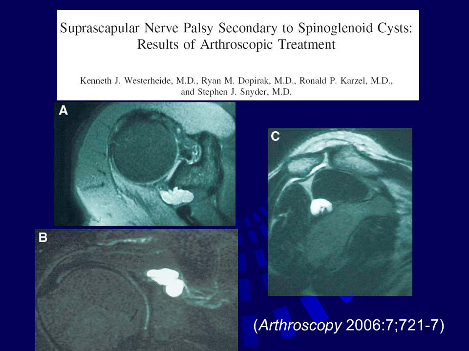 (Arthroscopy 2006:7;721-7)