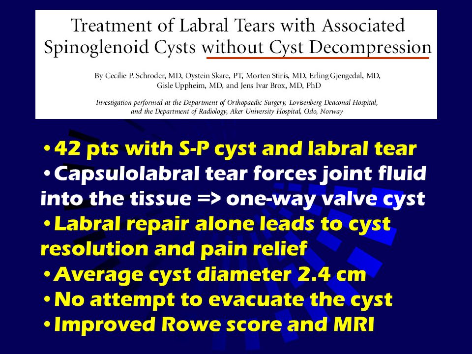 42 pts with S-P cyst and labral tear