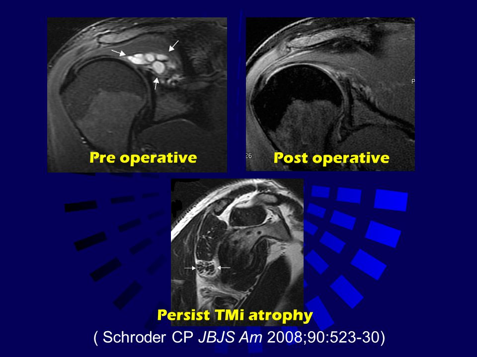 Pre operative Post operative Persist TMi atrophy ( Schroder CP JBJS Am 2008;90:523-30)