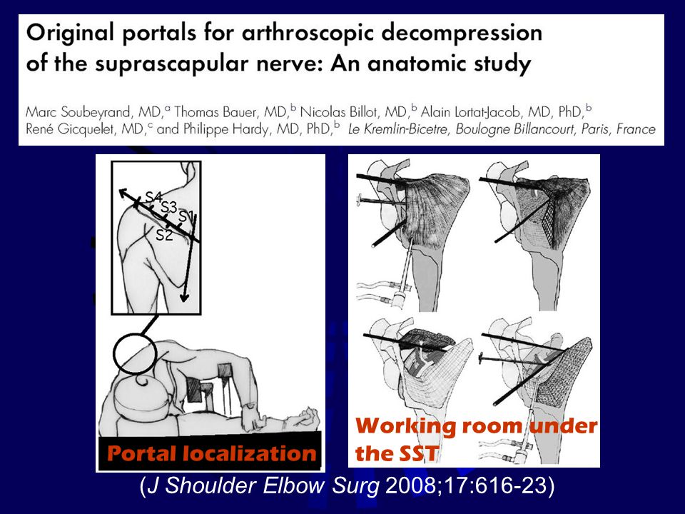 Working room under the SST Portal localization (J Shoulder Elbow Surg 2008;17:616-23)