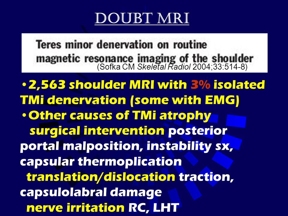 Doubt MRI (Sofka CM Skeletal Radiol 2004;33:514-8) 2,563 shoulder MRI with 3% isolated TMi denervation (some with EMG)