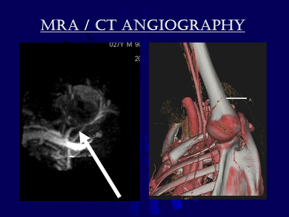 MRA / CT Angiography