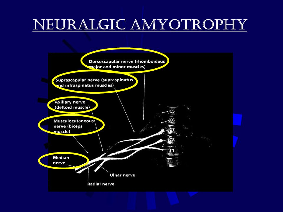 Neuralgic amyotrophy