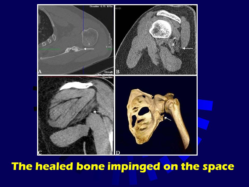 The healed bone impinged on the space