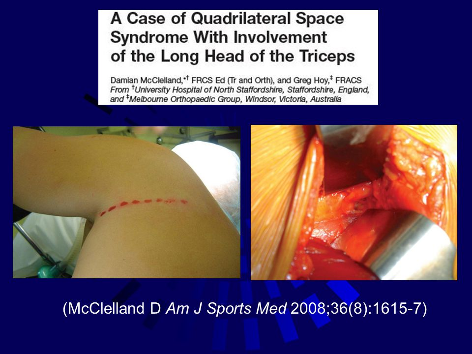 (McClelland D Am J Sports Med 2008;36(8):1615-7)