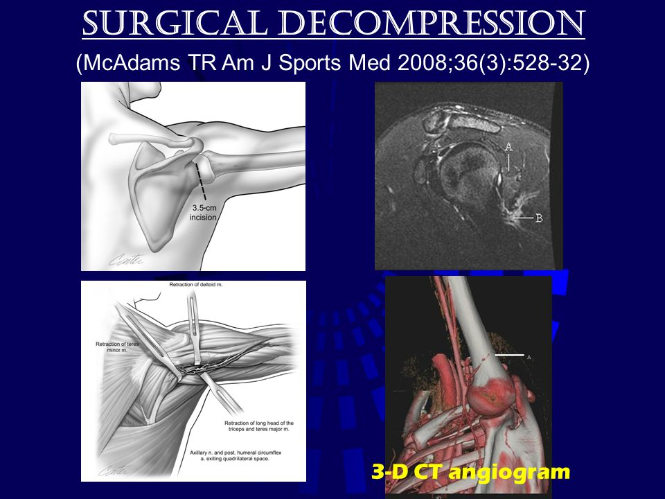 Surgical decompression