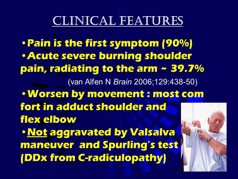 Clinical features Pain is the first symptom (90%)