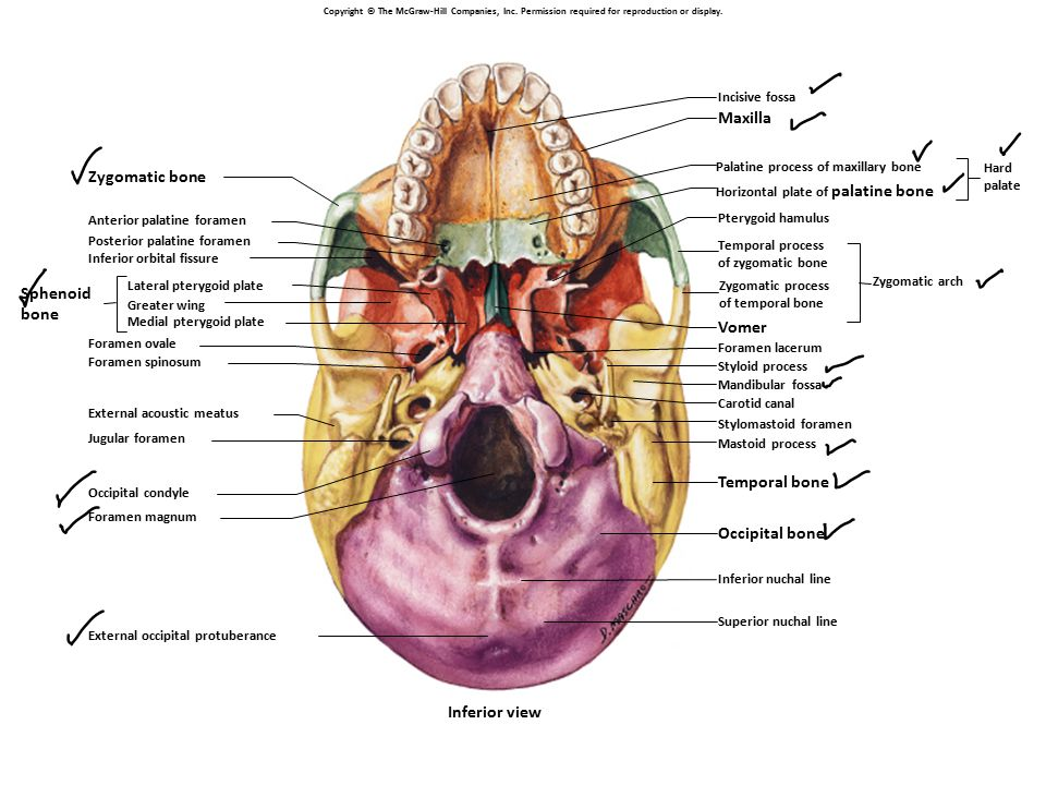 Maxilla Zygomatic bone Sphenoid bone Vomer Temporal bone