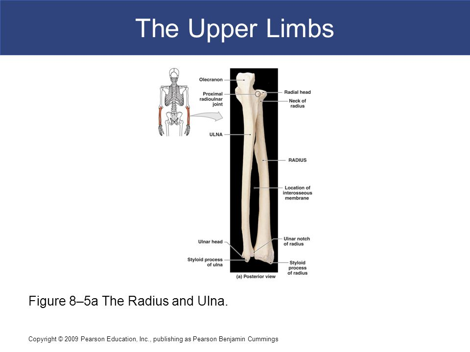 The Upper Limbs Figure 8–5a The Radius and Ulna.