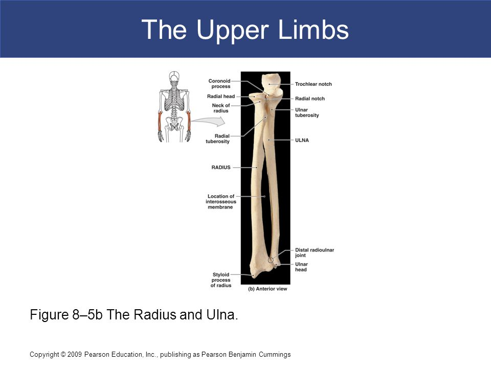 The Upper Limbs Figure 8–5b The Radius and Ulna.