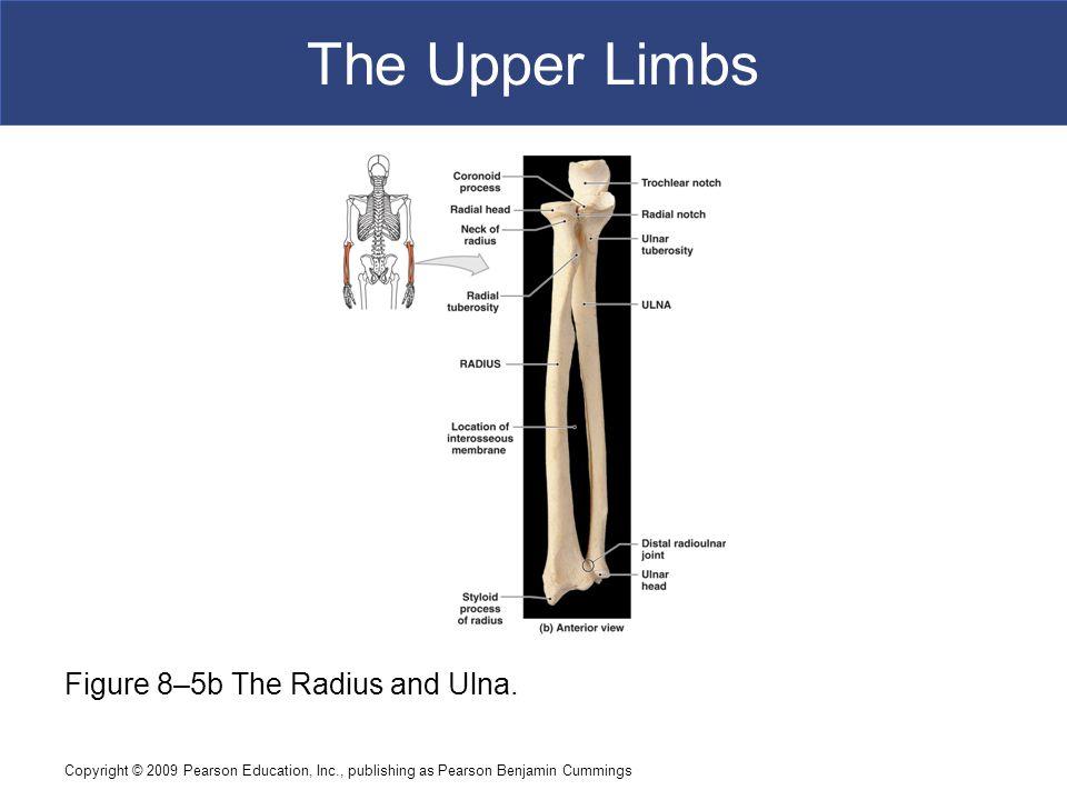 The Upper Limbs Figure 8–5b The Radius and Ulna.