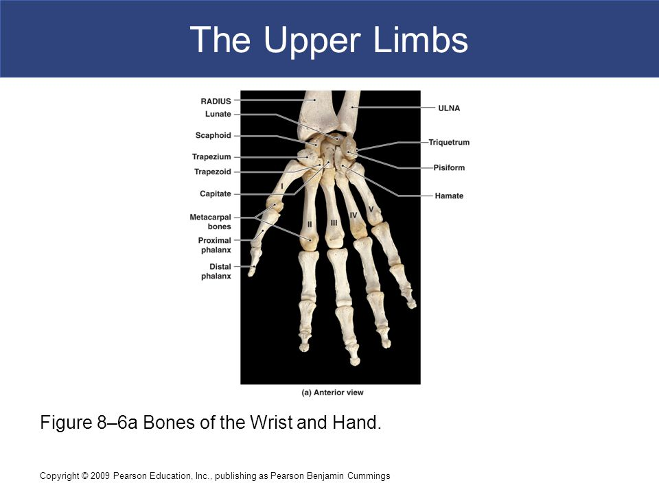 The Upper Limbs Figure 8–6a Bones of the Wrist and Hand.
