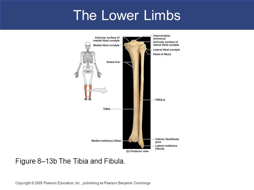 The Lower Limbs Figure 8–13b The Tibia and Fibula.